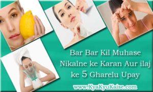 Pimples problem solution in hindi, Muhase hatane ka gharelu ilaj