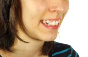 दांत अंदर करने के तरीके इन हिंदी, टेढ़े-मेढ़े दांतों से कैसे पाएं छुटकारा
