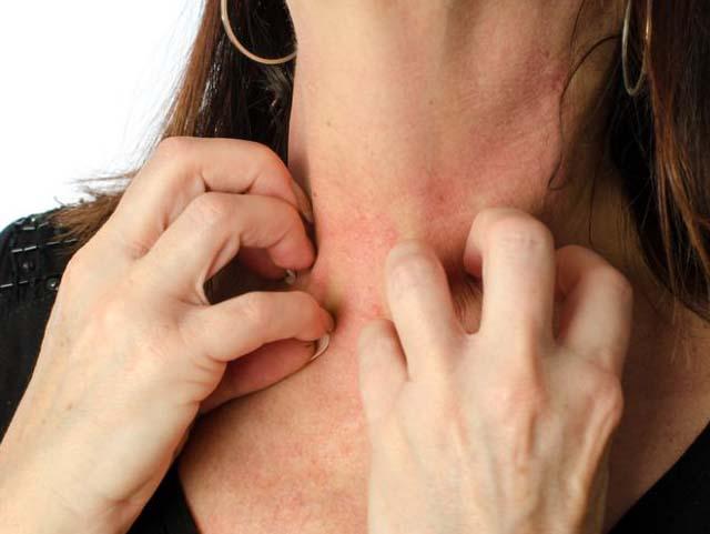 शरीर पर छोटे लाल दाने निकलना, Skin Problem Treatment at Home in Hindi