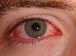 आँखें लाल होने के लक्षण