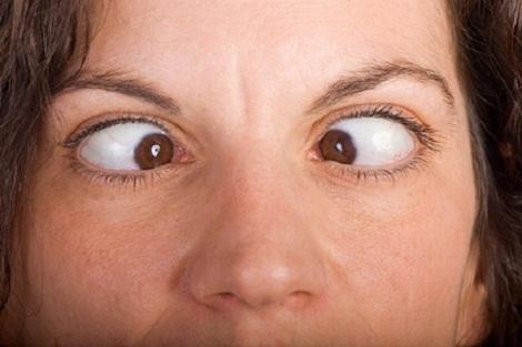 आँखों का भेंगापन