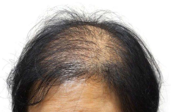 गंजे सिर पर बाल उगाने के उपाय