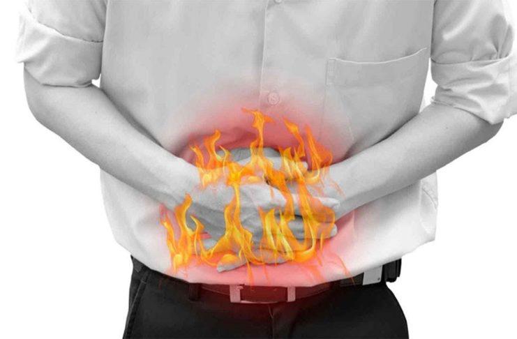 एसिडिटी और पेट में जलन का उपचार